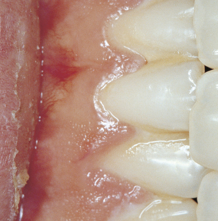 IMAGE: Photography – teeth